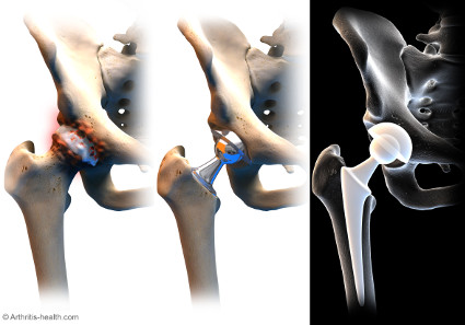 Jiffy Hip Replacement Surgery At Hrosm