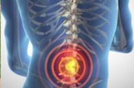 lumbar spinal instability