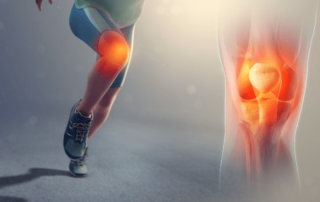 treating knee osteoarthritis