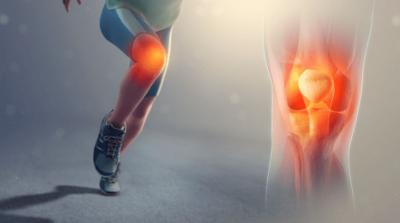 treating knee osteoarthritis