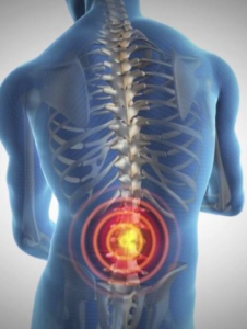 Targeted Nerve Blocks for Pain Treatment