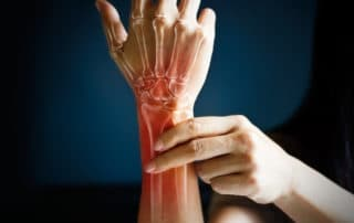 wrist and hand therapy