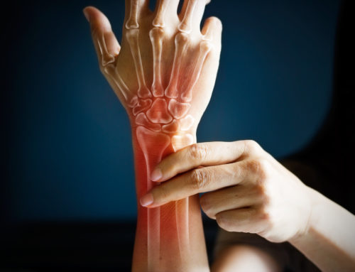 Physical Therapy Specialists for the Wrists and Hands