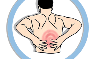 myofasial pain syndrome