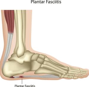 Heel Pain? Could be Plantar Fascilitis